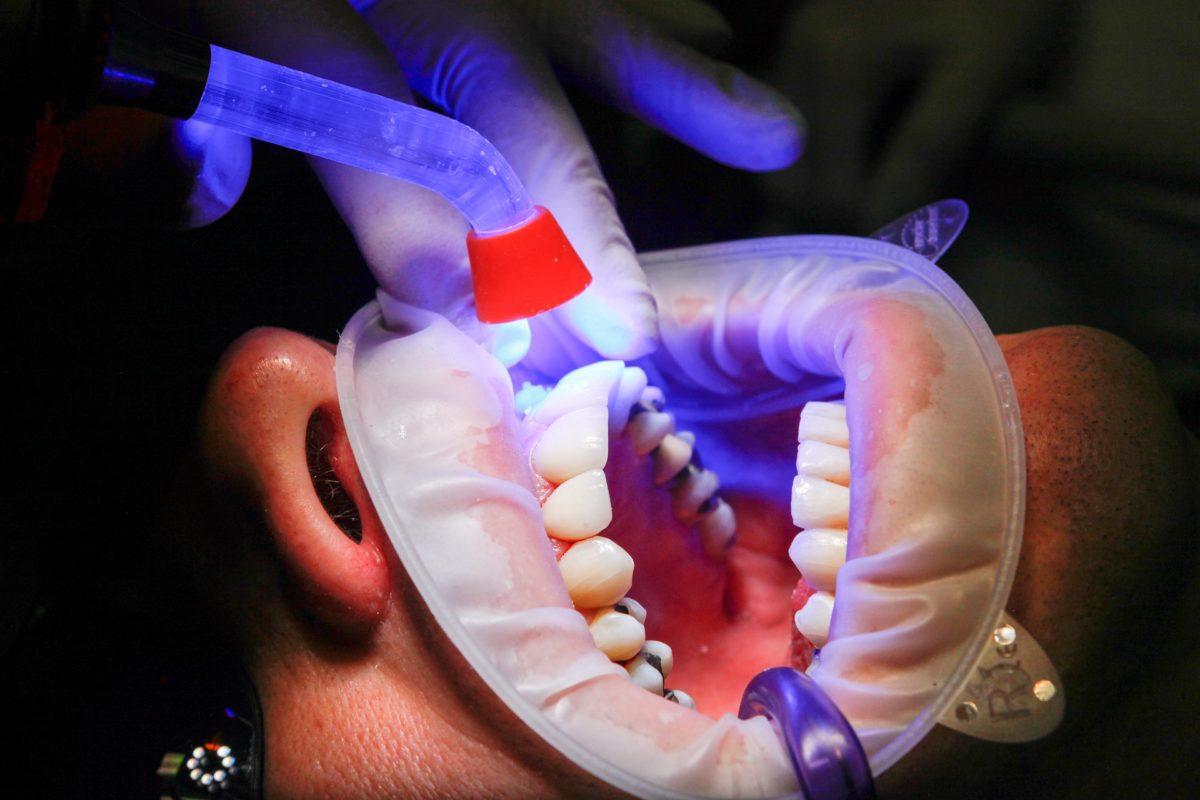 Złe podejście żywienia się to większe braki w jamie ustnej a dodatkowo ich zgubę